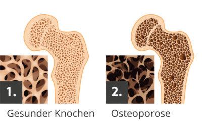 Knochendichtemessung, Osteoporose